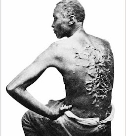Slave named Peter, revealing horrendous scars from whippings. Baton Rouge, LA, U.S., April 2, 1863